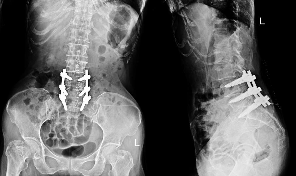 Xray of Lumbar Spine