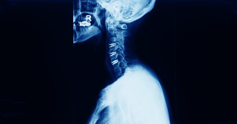 Cervical Disc Arthroplasty X-ray