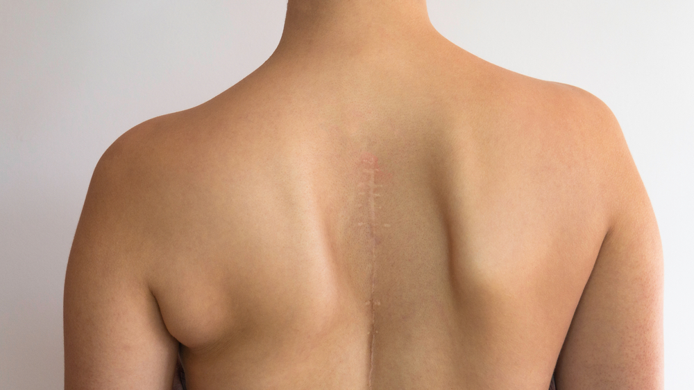 Patients back after Scoliosis Surgery