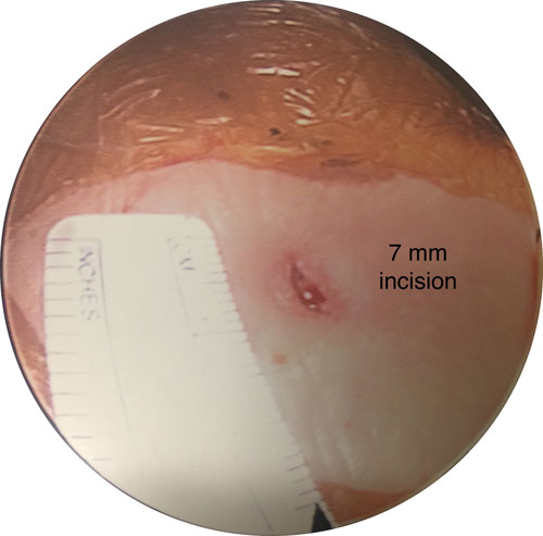 7mm showing the concept of Endoscopy Vs. Laser Surgery