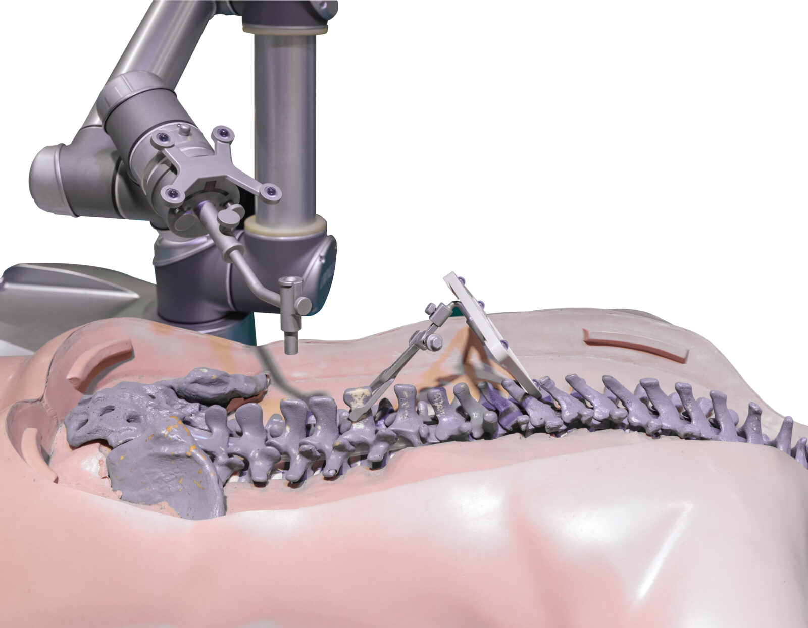 5fe37b f64f819b43e84a7193de6e5b94bf63fd mv2 showing the concept of Robotic Spine Surgery & Augmented Reality