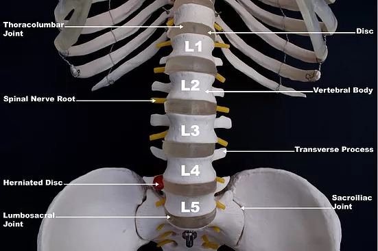 Lumbar Spine Labelled showing the concept of What is a Spinal Disc?